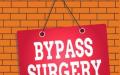 Bypass Generali 1